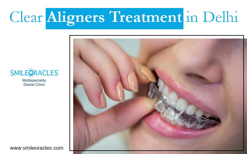 Clear Aligners Treatment in Delhi