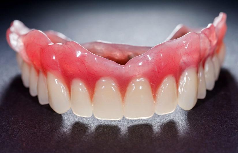 dentures-types-process-purpose