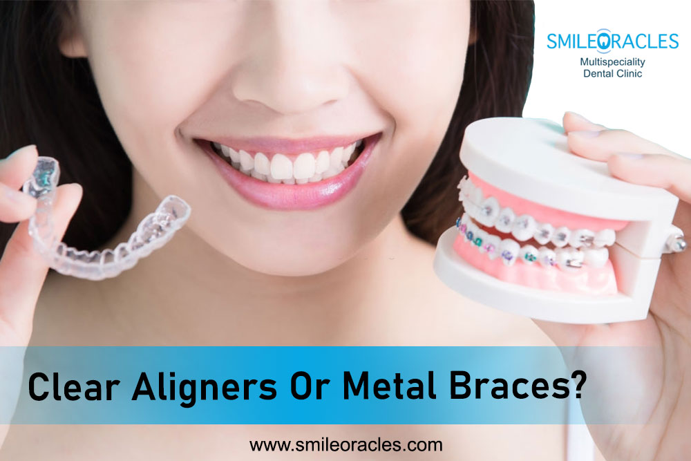 Clear Aligners Or Metal Braces